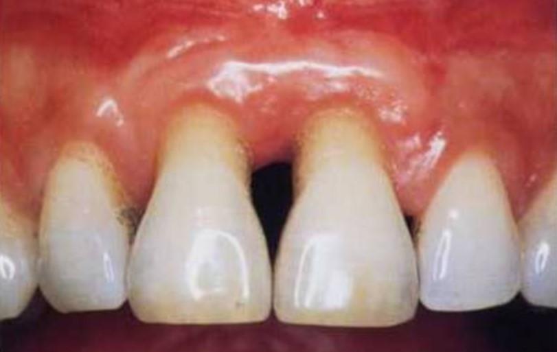 Hujše kronično vnetje dlesni